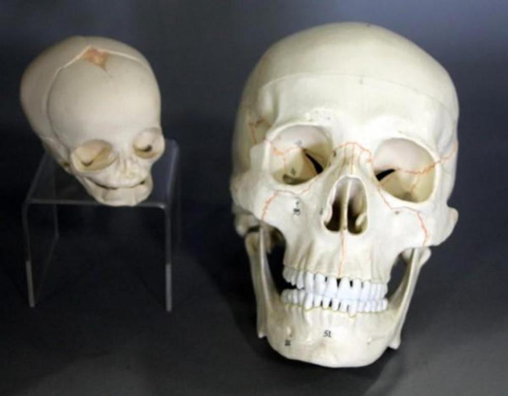 Human Anatomy Life Size Adult and Baby Skull Models, Adult Skull is ...